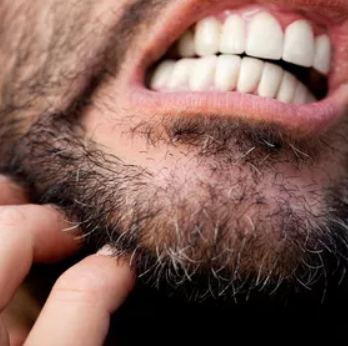 Itchy Beard? Don't Scratch It!